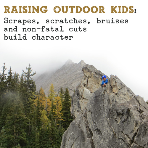 Raising Outdoor Kids: Scrapes build character by Big Grey Rocks